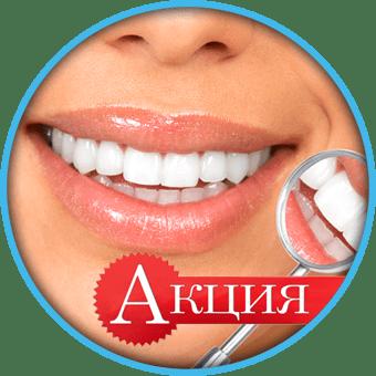 Акция имплантация зубов