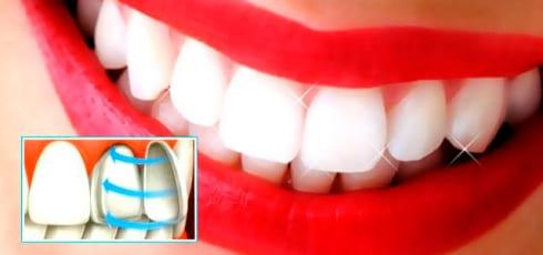 Реставрация зубов винирами в клинике «ПрофиСмайл» в Подольске