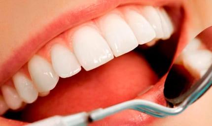 Эстетическая коррекция зубов винирами в «ПрофиСмайл» в Подольске